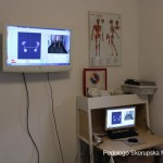 Proiezione valutazione baropodometrica