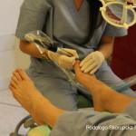 Trattamento onicopatie del piede