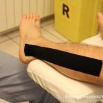 Trattamento post riabilitazione podologica
