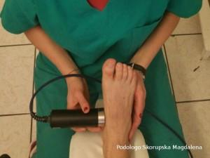 Trattamento agli ultrasuoni
