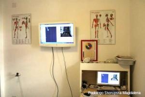 Monitor del baropodometro