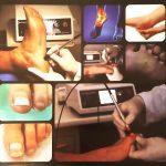 Trattamento curativo delle onicomicosi attraverso il laser