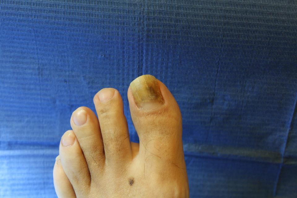 Onicomicosi sull'unghia dell'alluce del piede.